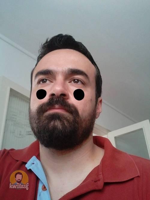 Μαύροι κύκλοι κάτω από τα μάτια